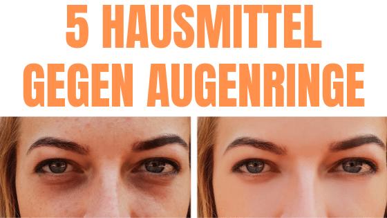 Augenringe entfernen – Die 5 besten Hausmittel